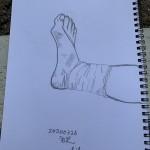 C.Mさん「右足」